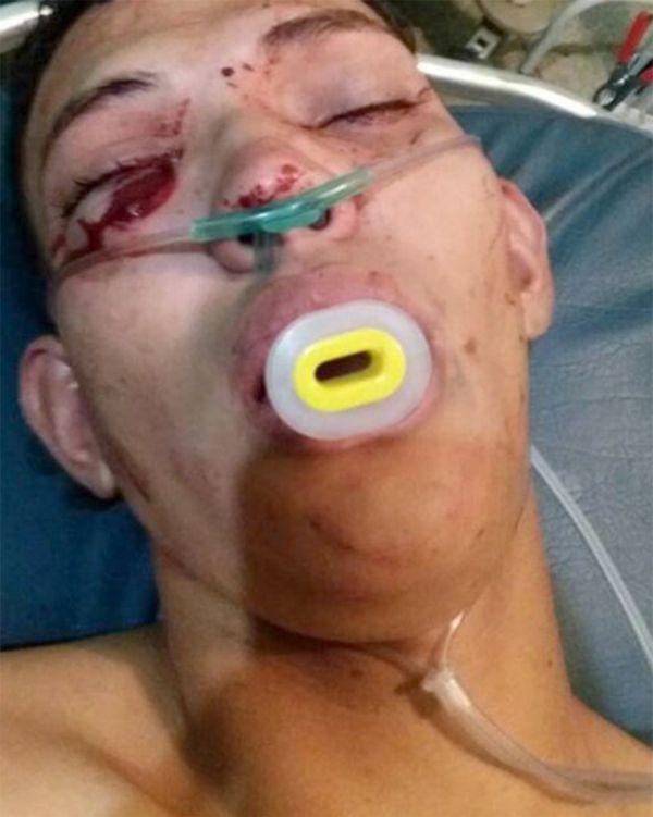 Mora había sido herido de bala en la localidad de Pedraza, en Barinas