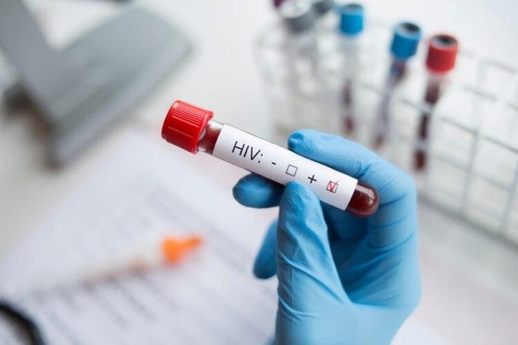 Diagnóstico sosteniendo una prueba de VIH positivo (Foto: Shutterstock)