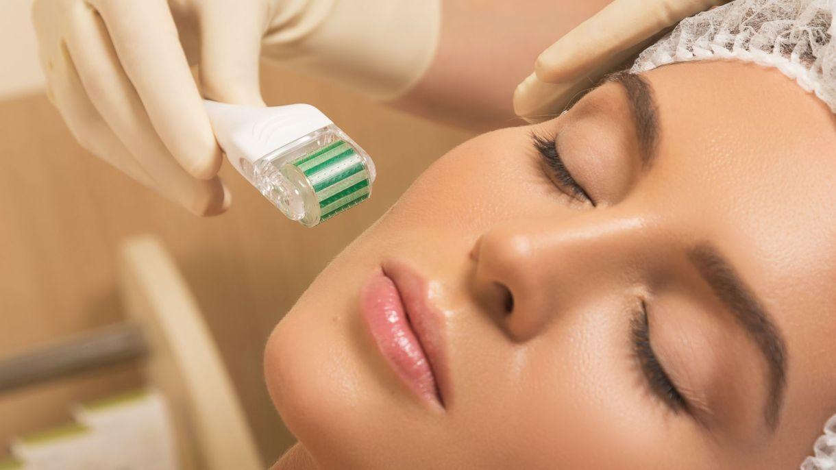 El microneedling es uno de los tratamientos que más consumen las celebridades Hollywood (Shutterstock)