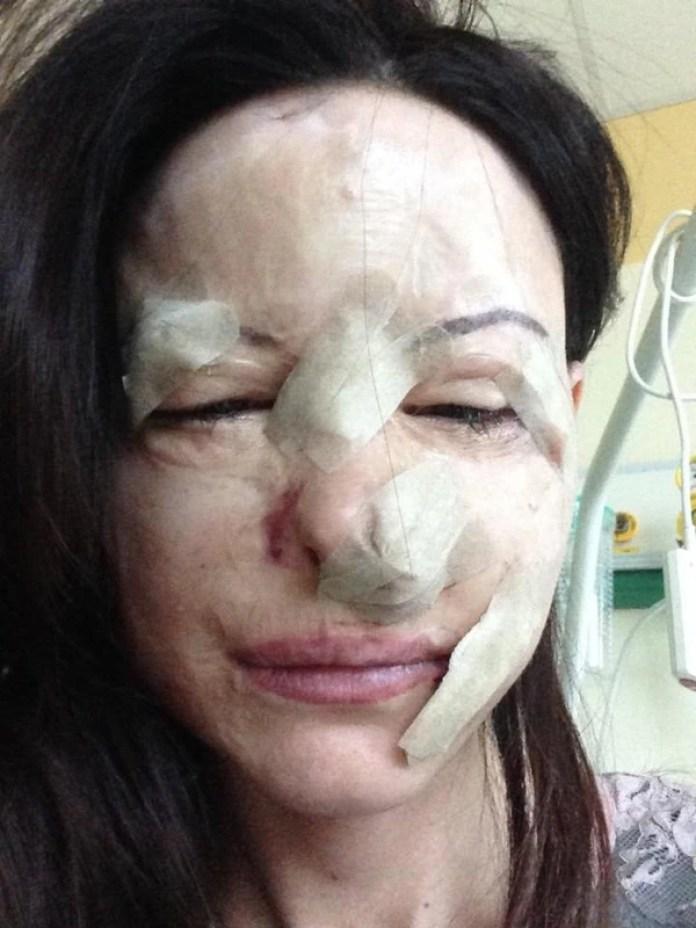 Una foto que Lucia compartió después de una de las operaciones a las que se sometió para reconstruir su rostro