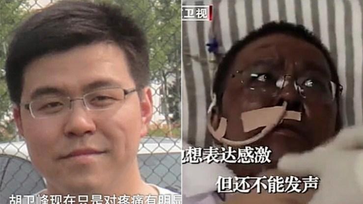 El antes y el después del doctor Hu Weifeng