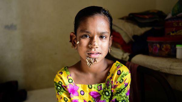 Sahana Khatun tuvo manchas en la piel desde los dos años, y las verrugas se le presentaron a los diez (AFP)