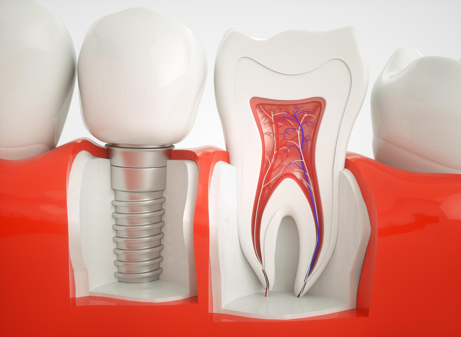 Nowoczesne techniki implantologiczne dostępne w krakowskich klinikach stomatologicznych