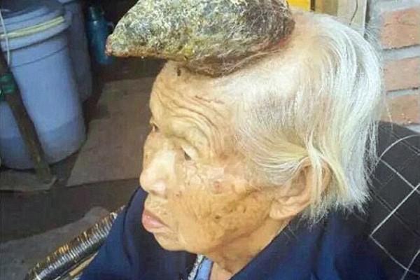 chine-femme malade avec corne sur la tete