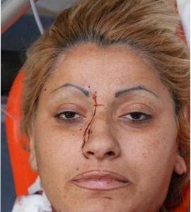 Rapina gioielleria Maddaloni. Dopo 17 giorni muore Vincenza Gaglione, la donna della banda.