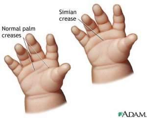 3.ciri tangan lipatan simian-tanda anak bayi dengan down syndrome-sindroma down sindrom