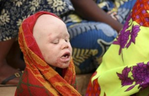 An albino child sits outside the courtroom in Ruyigi