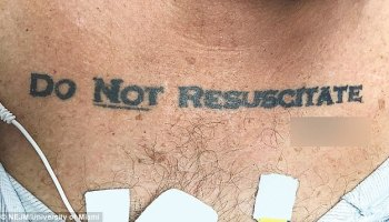 b43b56d72 Man Found With Weird Tattoo On His Chest Leaving Hospital Confused   Photo