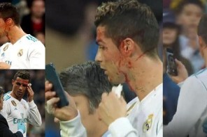 Moment Ronaldo borrowed doctor's phone to check his facial injury on the pitch (video)