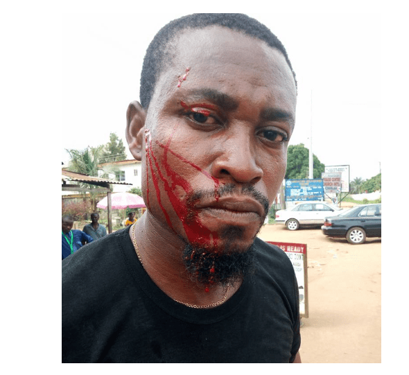 Capture 74 - [Photo]: Man allegedly assaulted by a police officer over N100