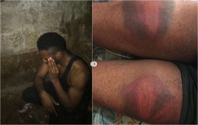 UK Based Nigerian brutalized