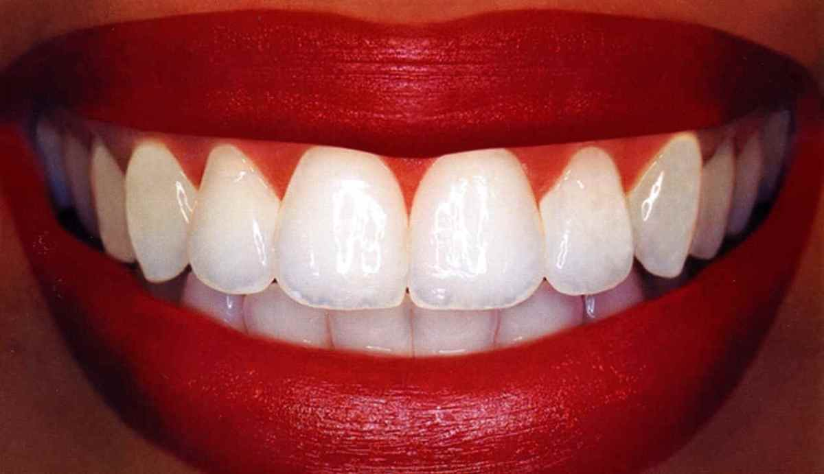 Do You Want Whiter Teeth Follow These Tips Today To Brighten Your
