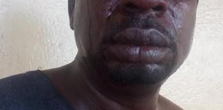 [Photos]: Veteran singer Baba Fryo beaten by unknown soldiers