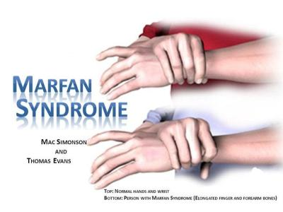 Marfan Syndrome Symptoms, Causes, Diagnosis and Treatment-min