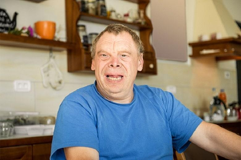 Down Syndrome Genetic Disorders