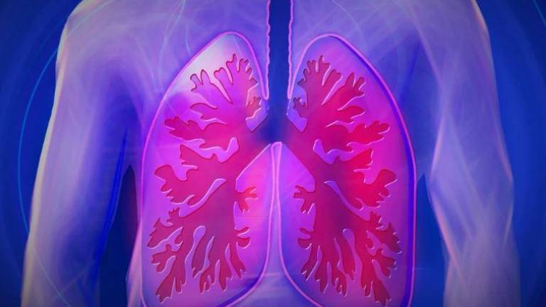 Inflamación de pulmones/cordis eu.