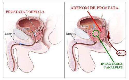 Tratamente fitoterapeutice în adenomul şi cancerul de prostată