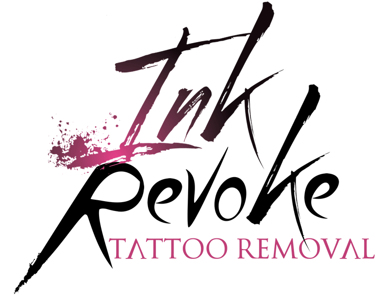 Ink Revoke Tattoo Removal