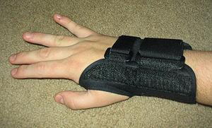 A splint can keep the wrist straight.