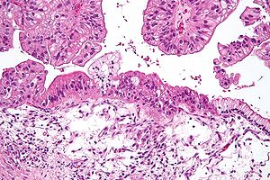 Potential breakthrough in treating late-stage ovarian cancer