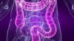 New Research Could Lead To a Breakthrough in Bowel Cancer Treatment