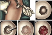 Tissue Engineers Report Knee Cartilage Repair Success with New Biomaterial