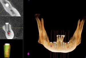 Biological tooth replacement -- a step closer