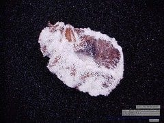 Natural fungus may provide effective bedbug control