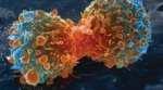 New Cancer Diagnostic Technique Debuts
