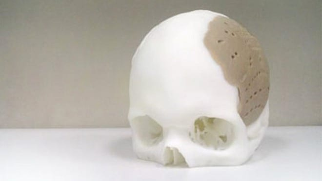 New Thermoplastic Makes 3-D Printed Skull Implants a Reality