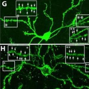 Scientists Coax Brain to Regenerate Cells Lost in Huntington's Disease in Mouse Model