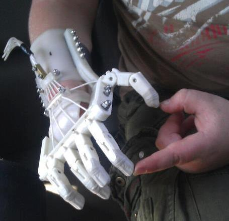 Robohand Uses 3-D Printing to Replace Lost Digits