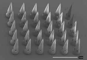 microneedles-300_tcm18-110963