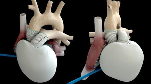 Carmat self-regulating artificial heart implanted in first human subject