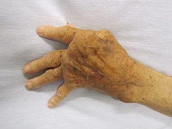 Rheumatoid_Arthritis