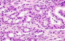 Bacteria in Mouth May Diagnose Pancreatic Cancer