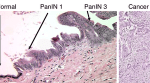 Vaccine 'Reprograms' Pancreatic Cancers to Respond to Immunotherapy