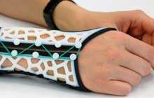 Research on 3-D printed wrist splints boost for arthritis sufferers