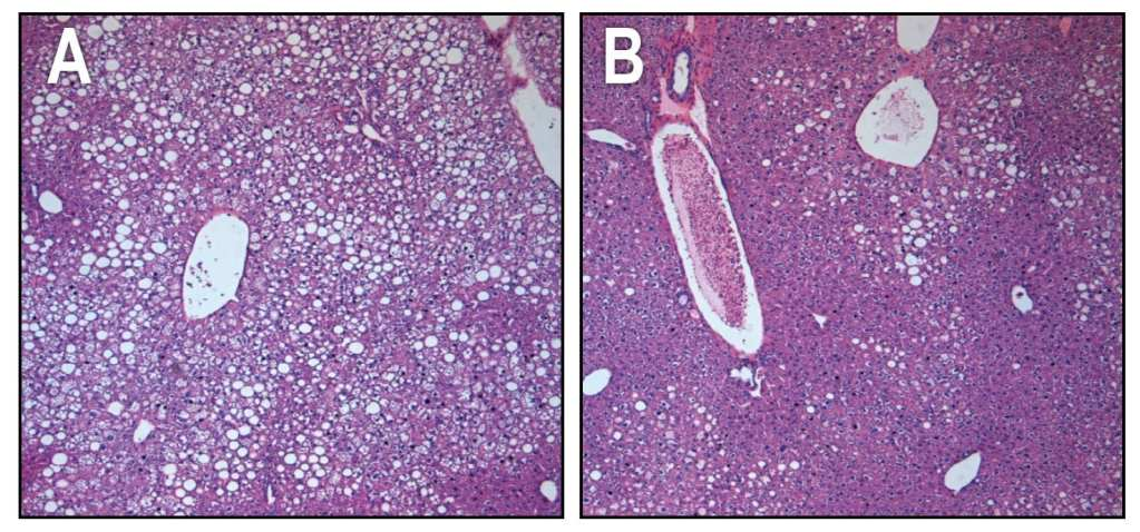 In the liver tissue of obese animals with type 2 diabetes, unhealthy, fat-filled cells are prolific (small white cells, panel A). After chronic treatment through FGF1 injections, the liver cells successfully lose fat and absorb sugar from the bloodstream (small purple cells, panel B) and more closely resemble cells of normal, non-diabetic animals. Courtesy of the Salk Institute for Biological Studies