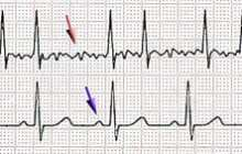 First evidence for painless atrial fibrillation treatment