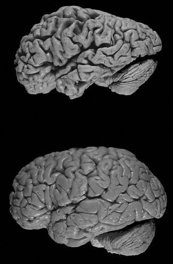 "Healthy brain (bottom) versus brain of a donor with Alzheimer's disease. Notable is the ""shrink"" that has occurred in Alzheimer's disease; the brain was decreased in size. (Photo credit: Wikipedia)"