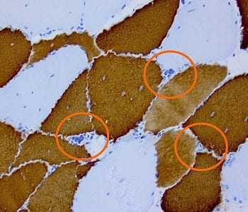 "English: Histopathology of Myotonic Dystrophy Type 2 (DM2, PROMM). Muscle biopsy showing mild myopathic changes and grouping of atrophic fast Fibres (Type 2, highlighted). Imunohistochemical staining for Type-1 (""slow"") Myosin (Photo credit: Wikipedia)"