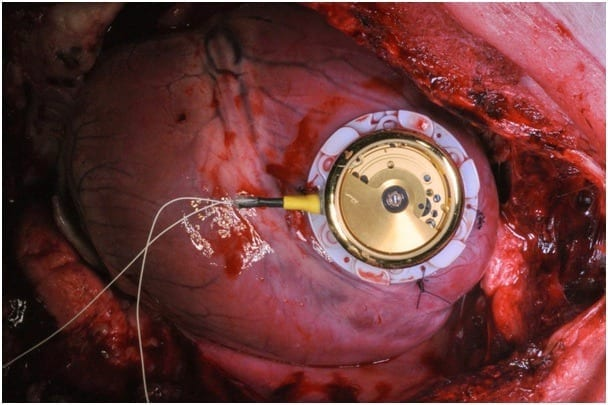 Batteryless cardiac pacemaker is based on automatic wristwatch