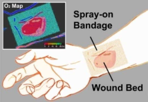 'Smart' Bandage Emits Phosphorescent Glow for Healing Below