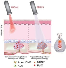 Research by Gang Han, PhD, shows that upconversion nanoparticles that can convert near-infrared light into red light can be used to extend photodynamic therapy for some cancers found in deeper tissues.