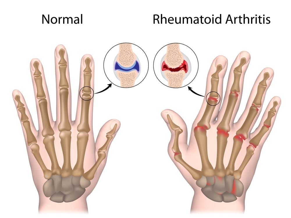 New effective, safe and cheap treatment strategy for rheumatoid arthritis