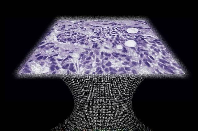 Credit: Aydogan Ozcan Tissue sample image created by a new lens-free microscope developed in the UCLA lab of Aydogan Ozcan.