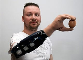 Scientists report bionic hand reconstruction in three Austrian men
