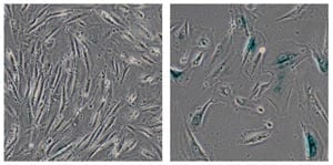 Salk Institute researchers discovered that a protein mutated in the premature aging disorder, Werner syndrome, plays a key role in stabilizing heterochromatin, a tightly packaged form of DNA. More generally, the findings suggest that heterochromatin disorganization may be a key driver of aging. This image shows normal human cells (left) and genetically modified cells developed by the Salk scientists to model Werner syndrome (right), which showed signs of aging, including their large size. Image: Courtesy of the Salk Institute for Biological Studies