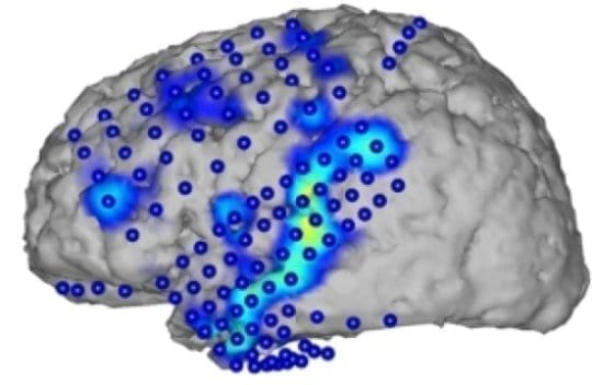 Brain activity recorded by electrocorticography (blue circles). From the activity patterns (blue/yellow), spoken words can be recognized. Credit: CSL/KIT